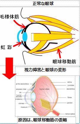 視力障害と眼球移動筋の委縮