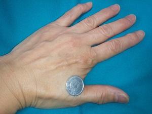 1円玉療法1