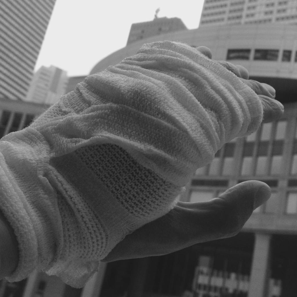 怪我偽装手袋