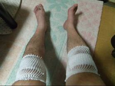 就労継続支援A型事業所で3日目に洗車中に階段で転倒し両膝を打撲した