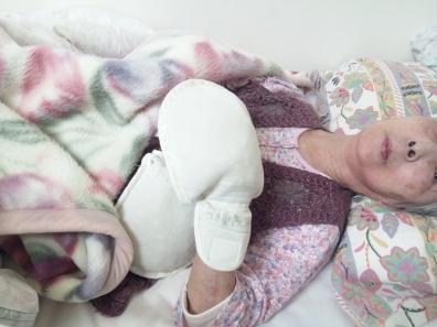 介護老人保健施設入居中の母の状態は両手にグローブをはめさせれていた