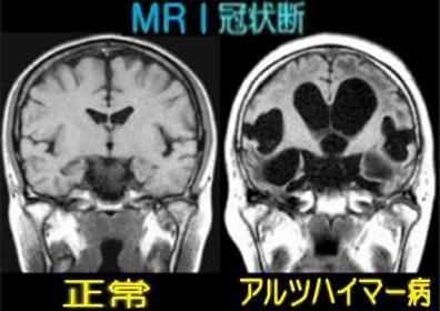 MRI検査でアルツハイマー病の若年性の認知症患者が増えてるMRI画像