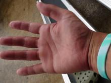 まる米の手