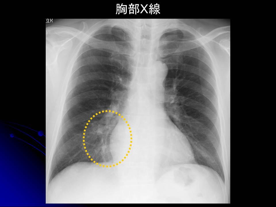 長引く咳にはご注意を!! パート2 肺膿瘍 - ガンちゃん先生奮闘記